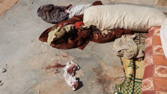 Les civils attaqués par les forces d'occupation turques à Aïn Issa