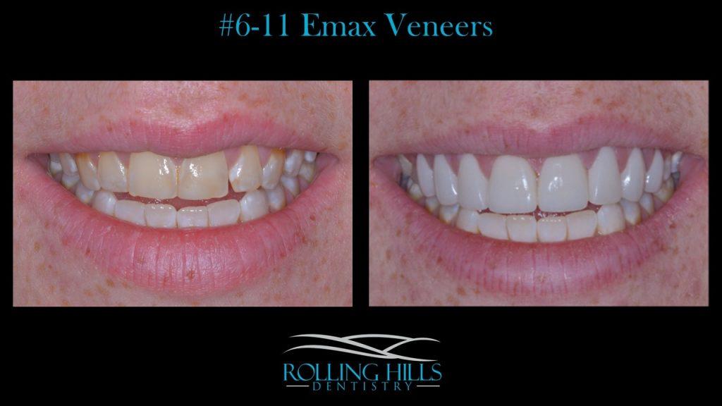 porcelain dental veneers danbury