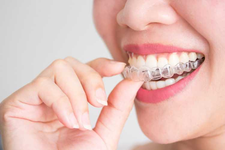 invisalign danbury ct