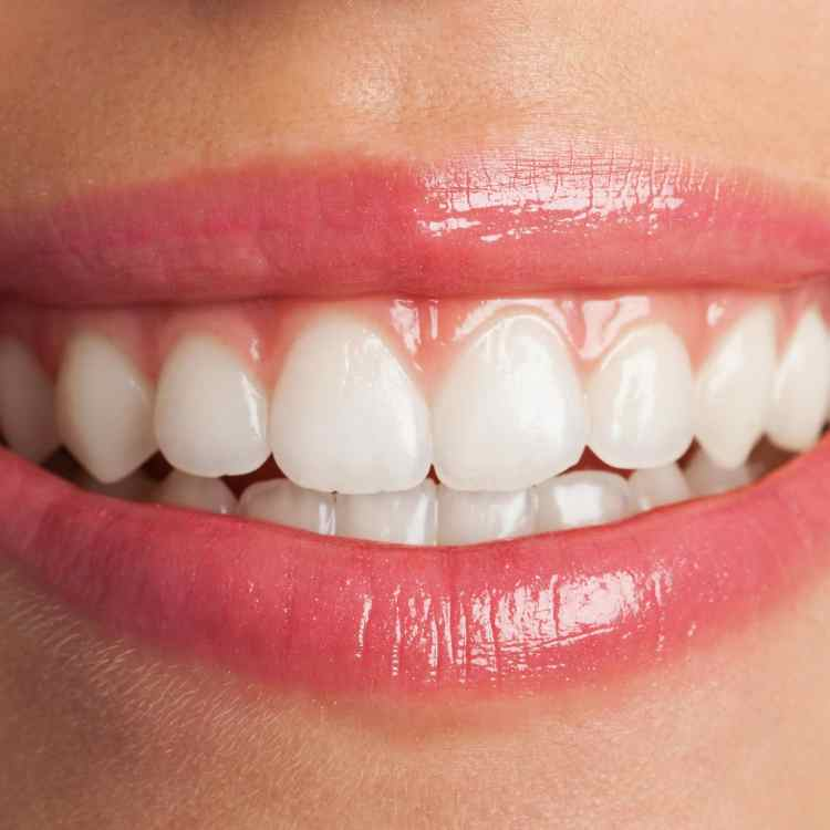 chipped tooth repair danbury ct