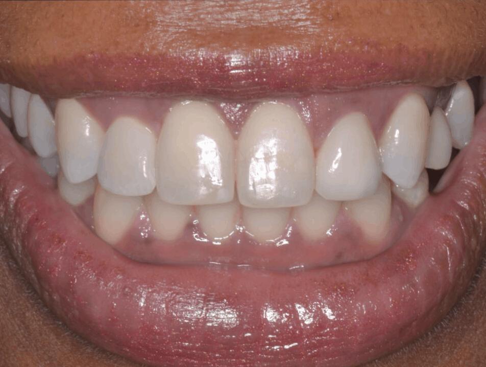 after full smile dental implants ct