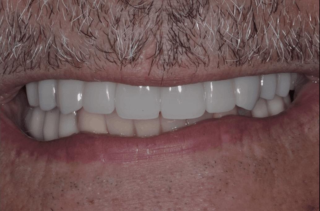 best dental implants after