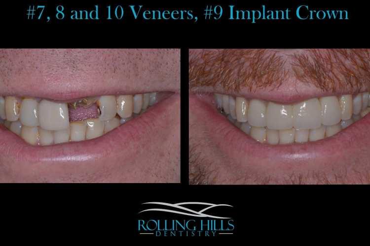 dental implants danbury ct