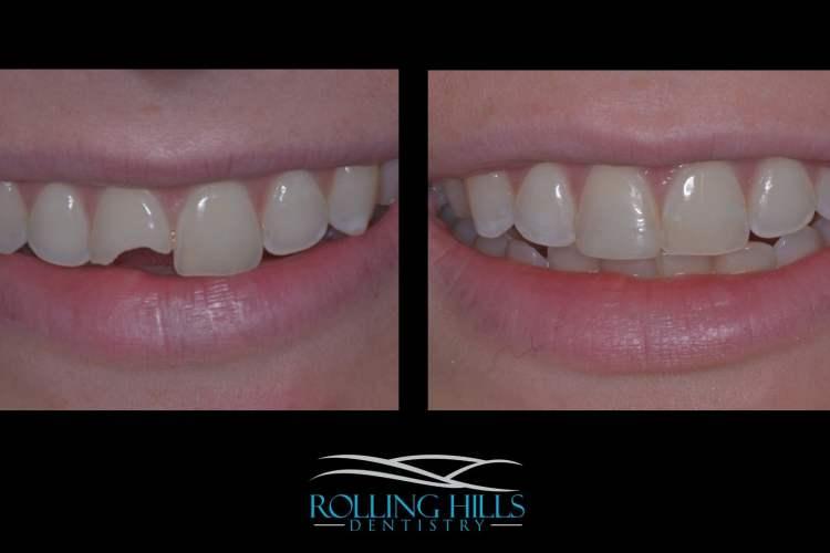 dental work danbury composite