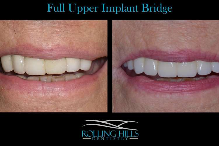 implant bridge danbury