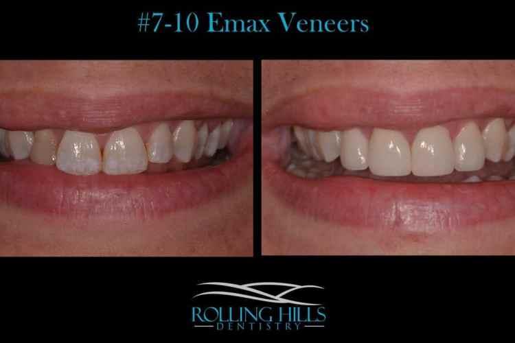 danbury cosmetic dentistry