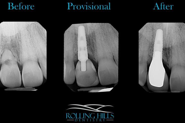 provisional dental implant danbury