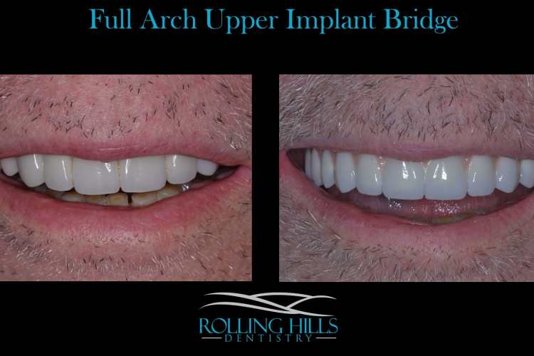 dental implants upper