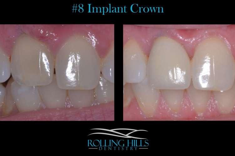 implant crown danbury