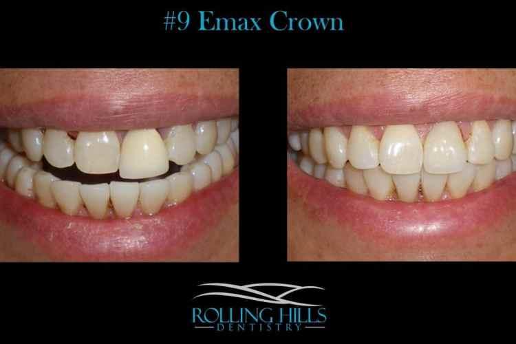 emax crown danbury ct