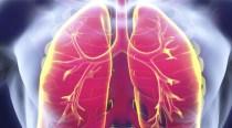 6 lucruri pe care trebuie să le cunoşti despre pneumonie