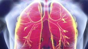 Pneumonie. Aprindere de plamani