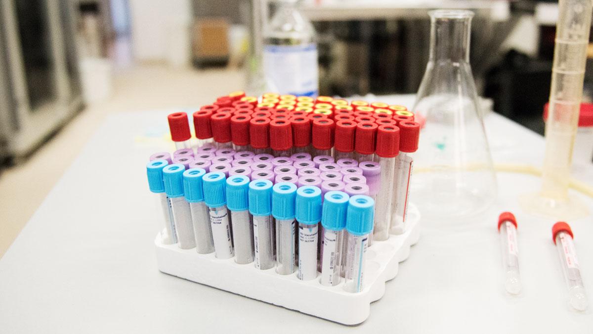 test biopsia liquida prostata