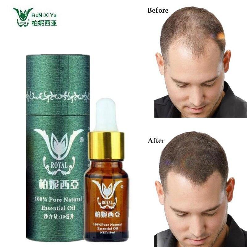 The Best Online Buy Wholesale Anti Hair Loss Products From China Pictures