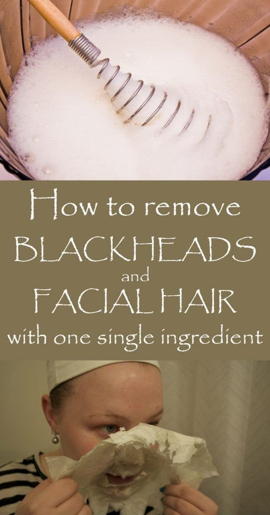 The Best Learn How To Remove Blackheads And F*C**L Hair With One Pictures