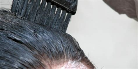 The Best Can Dyeing Your Hair K*Ll Head Lice Pictures