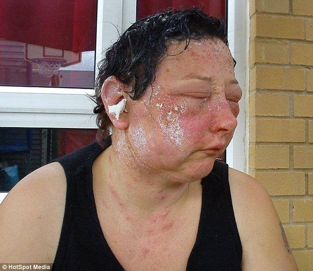 The Best Woman S Suffers Permanent Sight Damage After Allergic Pictures