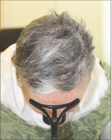 The Best Acute Hair Loss Hair Loss Pictures