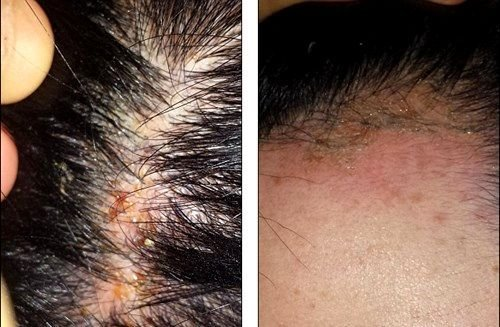 The Best Allergic Reaction To Hair Dye Treatment Pictures Photos Pictures