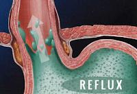 Összetett jó tanács természetgyógyásztól a Refluxhoz