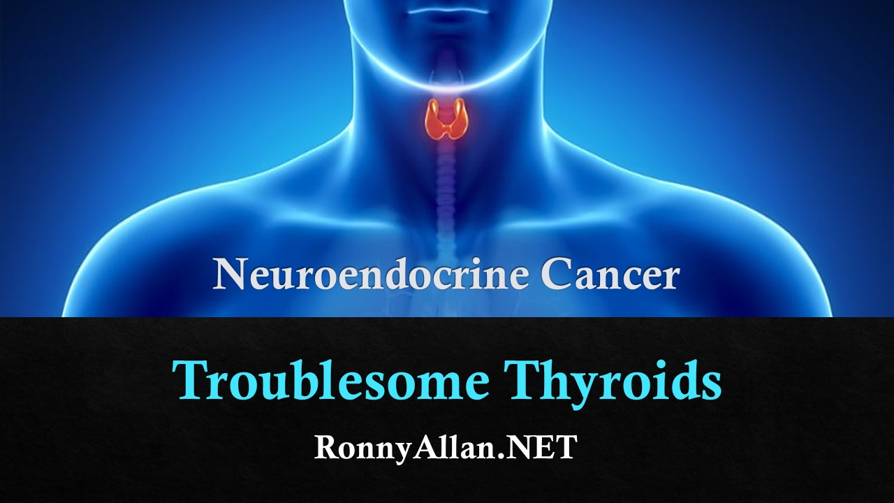 Neuroendocrine Cancer Troublesome Thyroids Ronny Allan Living