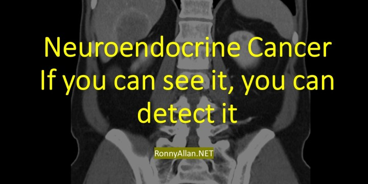 Neuroendocrine Cancer – If you can see it, you can detect it!