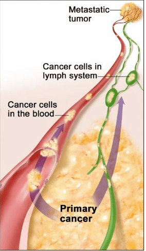 Neuroendocrine cancer in lymph nodes - printreoale.ro