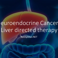Neuroendocrine Cancer - Liver directed therapy