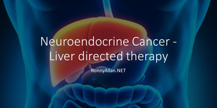 Neuroendocrine Cancer – Liver directed therapy