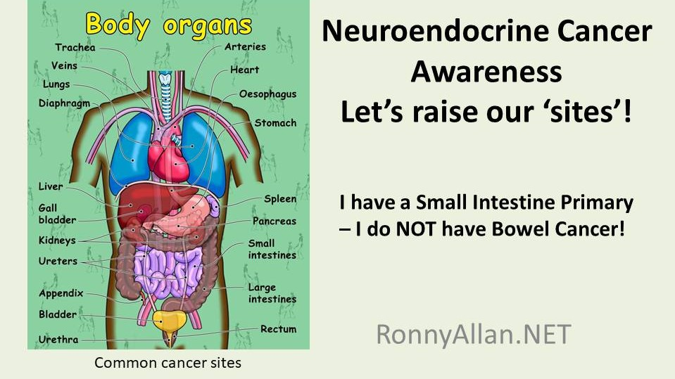 Neuroendocrine Cancer - let's raise our 'sites'