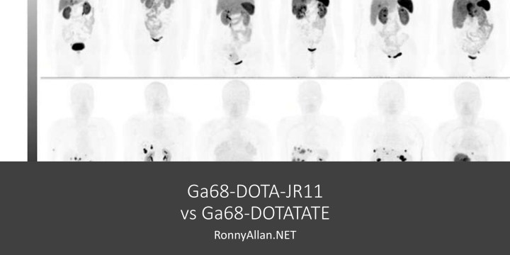 SSTR PET – Ga68-DOTA-JR11 vs Ga68-DOTATATE
