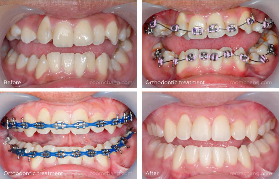 Trend Aksesoris Terbaru Untuk Merapikan Gigi