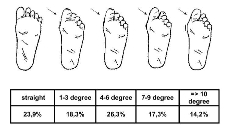 仙台市青葉区で外反母趾を筋膜に治療を行う整体