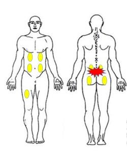 仙台の整体で腰椎分離症に筋膜の施術を行ったポイント