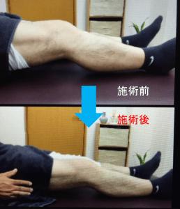 仙台市青葉区で変形性膝関節症に筋膜を施術する整体