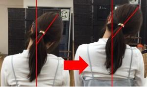 仙台の整体で片頭痛に対して筋膜リリースした結果