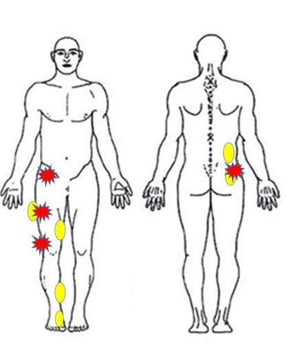 仙台の整体で股関節痛に筋膜を施術した部分
