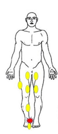 仙台の整体でランニングで足の痛みに筋膜リリースを行うルーツ