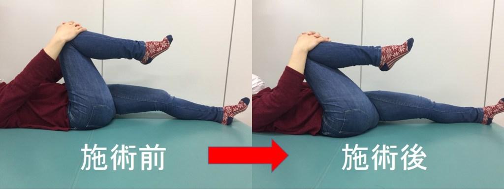 仙台の整体で股関節の痛みに筋膜リリースで施術した結果