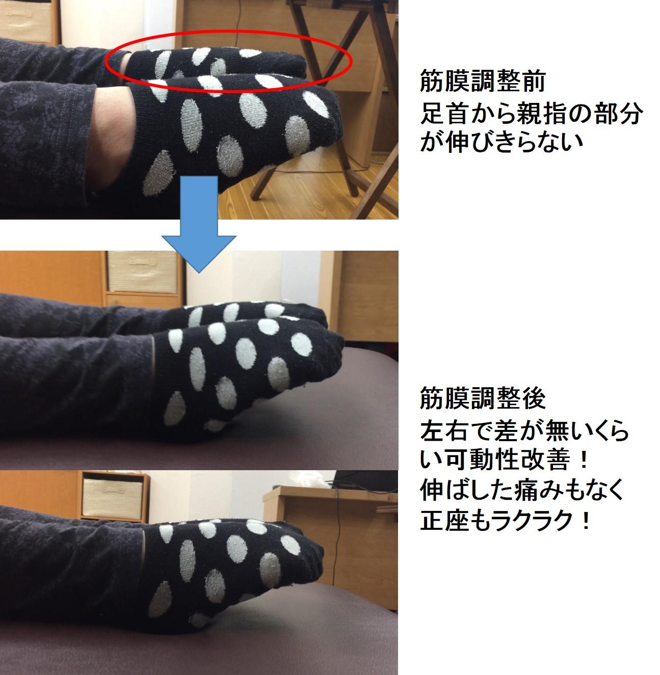 足首の痛みに仙台の整体で筋膜リリースした結果