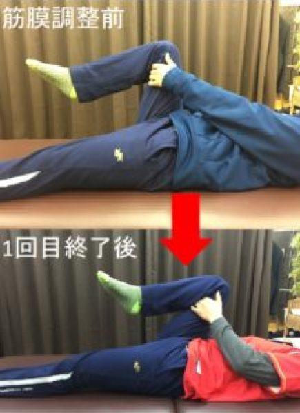 仙台の整体で股関節痛に筋膜リリースを施術した結果