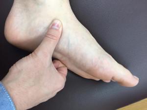 有痛性外脛骨に筋膜を施術する仙台の整体