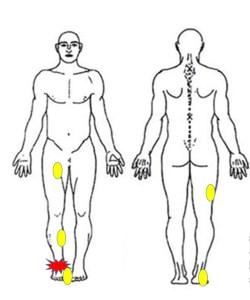 足関節インピンジメント症候群に対して筋膜を治療するポイント