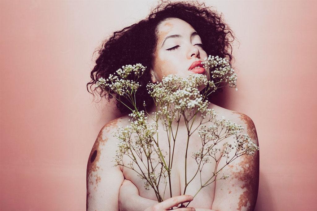 vitiligo-model-deutschland-bianca-rosemarie