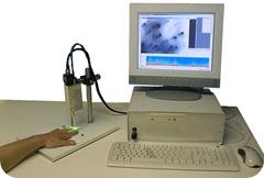 Nailfold-Capillaroscopy