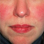 How to Cure a Red Face (Facial Erythema)