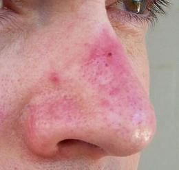 Rosacea Papules Nose