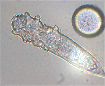 Just How do you Kill Demodex Mites ?