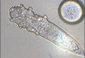 Demodex Mites are hard to study