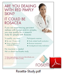 rosetta-foam-study